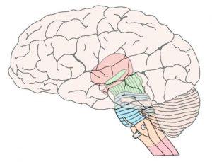 brain stem injury lawsuits