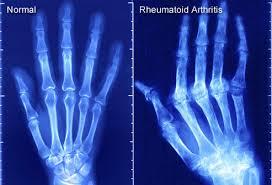 arthritis injury lawyers